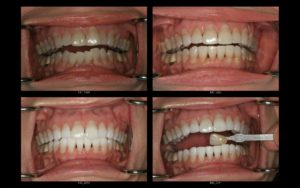 Invisilign and KOR Whitening